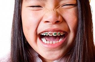 img-braces-kids