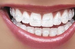img-braces-types